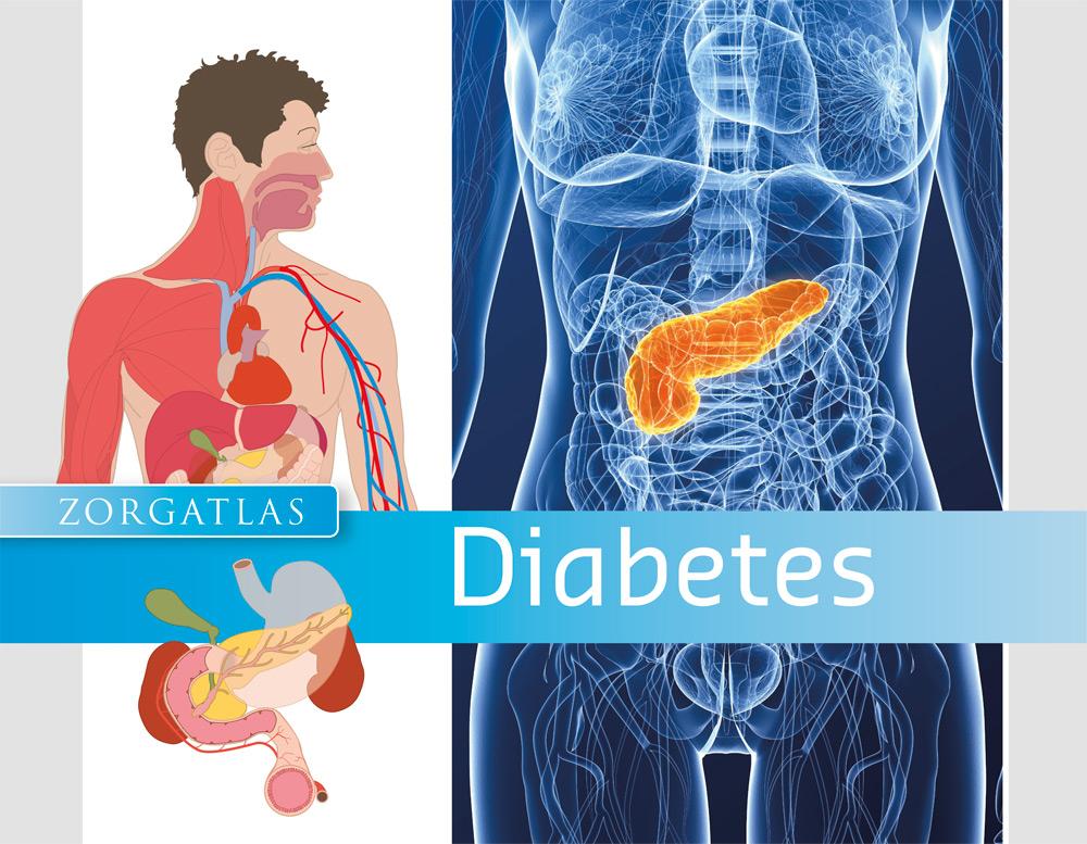 Zorgatlas Diabetes - Cover