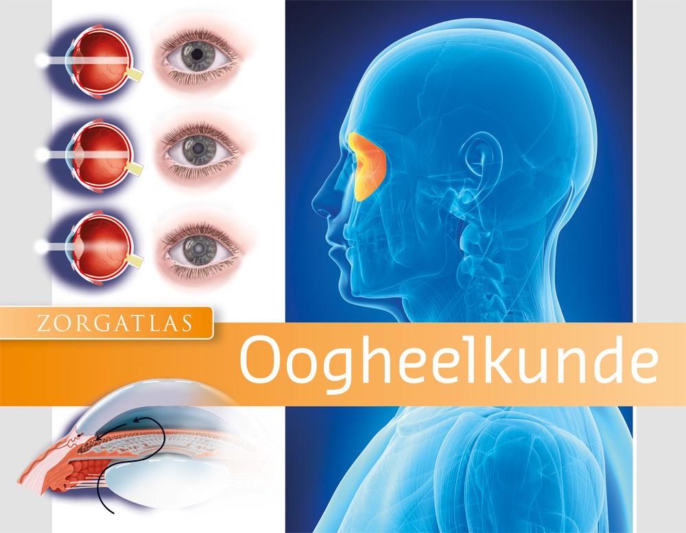 Zorgatlas Oogheelkunde - Cover